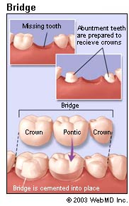 Dental Bridges done by Olympic Dental and Denture
