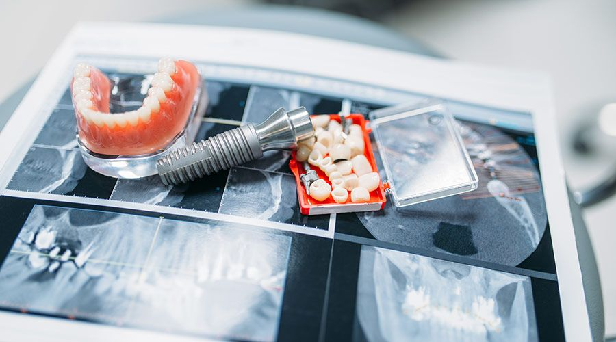 denture services dentures xray tools Olympic dental and denture